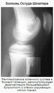 Болезнь Шляттера рентген