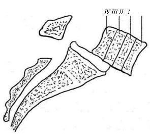 Степени листеза