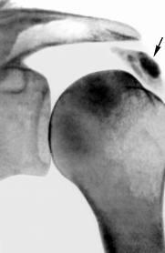 Плечелопаточный периартрит рентген снимок