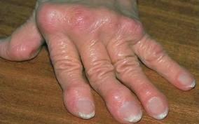 Рука больной с ревматоидным артритом